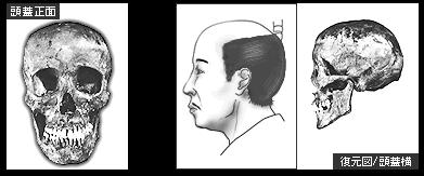 徳川家宣の頭蓋骨