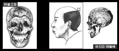 徳川家重の頭蓋骨